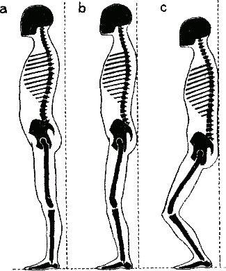 Метод Александера: Комплексы двигательных упражнений