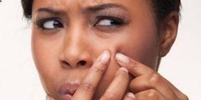 Remède efficace contre lacné Le vinaigre de cidre est un traitement naturel pour traiter et empêcher les éruptions dacné. Comment faire : préparez un mélange de vinaigre de cidre et deau (2 cuillères à café de vinaigre pour 250 ml deau). Puis, appliquez ce traitement sur votre peau avec un morceau de coton, plusieurs fois par jour. Ce soin va aider à réduire linfection acnéique et à assécher linflammation.