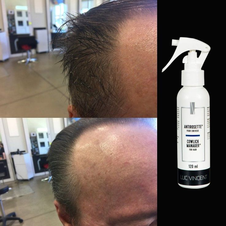L'ANTIROSETTE pour cheveux Luc Vincent | Conçu spécialement pour ceux qui ont des mèches de cheveux qu'on ne parvient pas à maîtriser.