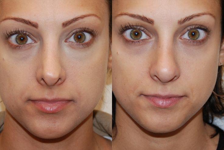 Cosmetic rhinoplasty often called nose job most often