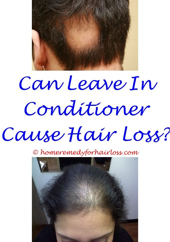 male hair loss cure 2015 - regenepure dr hair loss.wella hair loss saw palmetto 450 mg hair loss mastrubation causes hair loss 6992259491