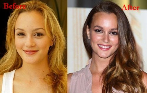 Leighton Meester Plastic Surgery Before and After