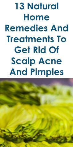 This Guide Shares Ideas On The Following; Pimple Like Bumps On Scalp That Hurt, Painful Pimples On Scalp, Small Bumps On Scalp, Bumps On Scalp Pictures, Home Remedies For Pimples On Head, Painful Bumps On Scalp That Come And Go, Hard Bumps On Scalp, Scalp Folliculitis, Etc.