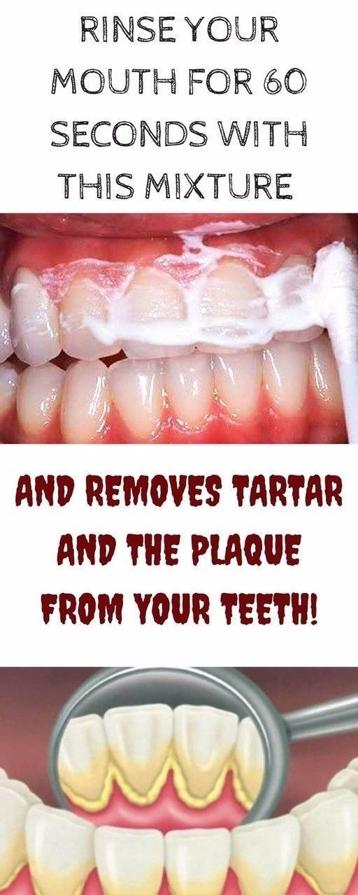 Rinse Your Mouth For 60 Seconds With This Mixture and Removes Tartar and the Plaque From Your Teeth! #beauty #teeth #teethwhitening