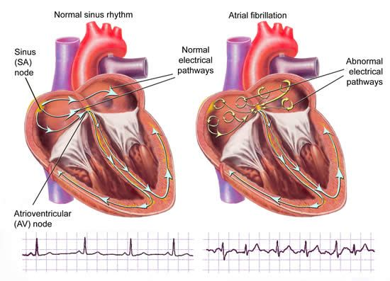 arrhythmias symptoms and treatment Cardiac dysrhythmia arrhythmias are a common  the diagnosis and elective treatment of chronic or episodic arrhythmias require  palpitation, or no symptoms.