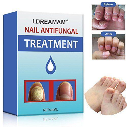 traitement mycose ongle pied