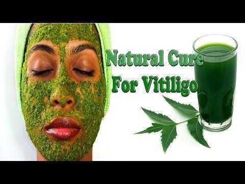 Best Natural Cure For Vitiligo l Pigmentation Treatment At Home - YouTube