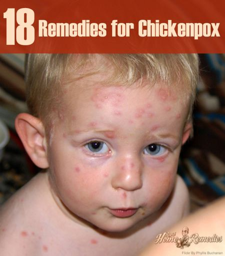 18 Simple Home Remedies For Chicken Pox | http://homestead-and-survival.com/18-simple-home-remedies-for-chicken-pox/