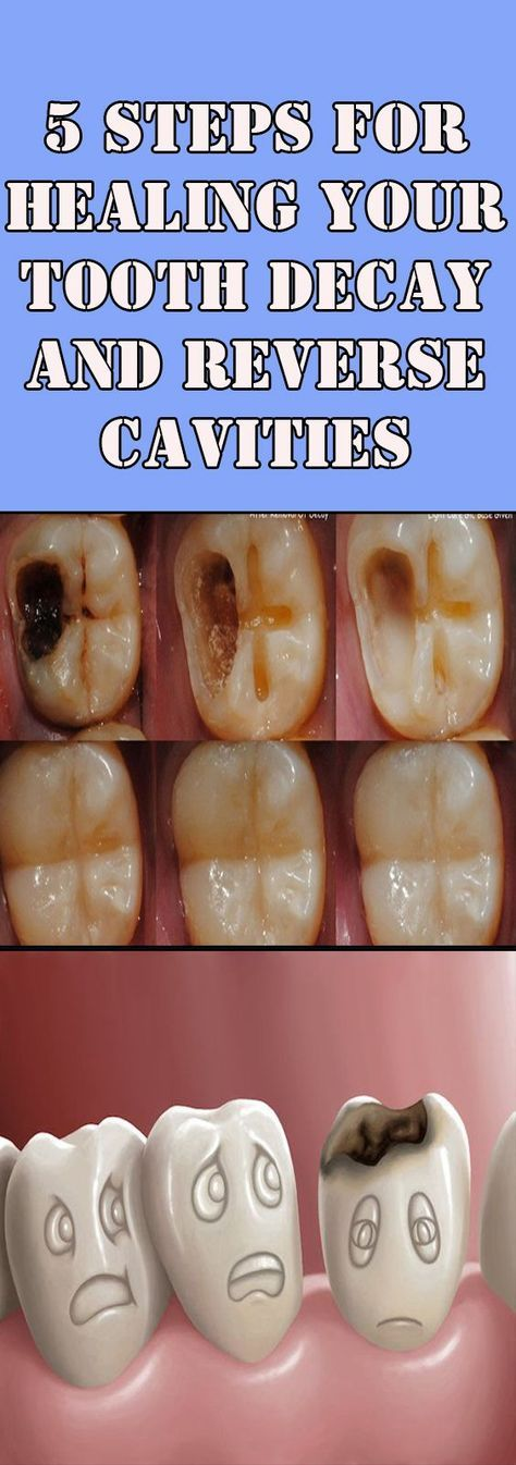 5 Steps for Healing Your Tooth Decay and Reverse Cavities - Cavity - Teeth