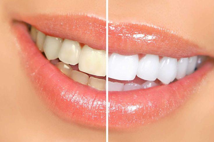 Hoe krijg je witte tanden zonder te bleken? Wij hebben 3 huis-, tuin- en keukenmiddeltjes: baking soda, aardbeien en bananenschil