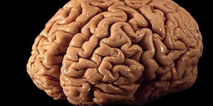 A new study from researchers at the Auckland University of Technology's National Institute for Stroke and Applied Neuroscience has discovered a dramatic link between people who have suffered a mild…