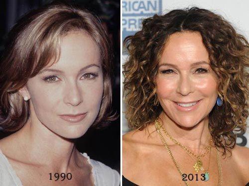 Jennifer Grey Nose Job Before & After