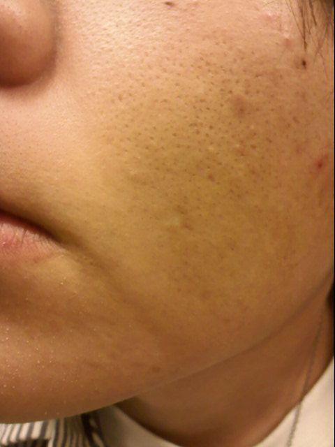 srhink large facial pores jpg 1500x1000