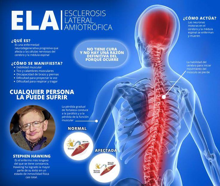"""40ª PUBLICACIÓN: """"ELA"""". En el presente artículo se revisa los trabajos publicados tanto en pacientes como en modelos animales de ELA y se discute la implicación de los principales procesos celulares que parecen contribuir a su desarrollo.  Referencia: Riancho, J., Gonzalo, I., Ruiz-Soto, M., & Berciano, J. (2016). ¿Por qué degeneran las motoneuronas? Actualización en la patogenia de la esclerosis lateral amiotrófica. Neurología. http://dx.doi.org/10.1016/j.nrl.2015.12.001"""