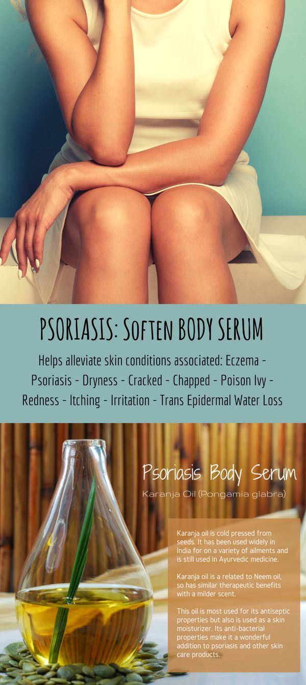 A serum that helps to soften the thickest psoriasis dry skin, scales and soothe dry, cracked or parched skin.