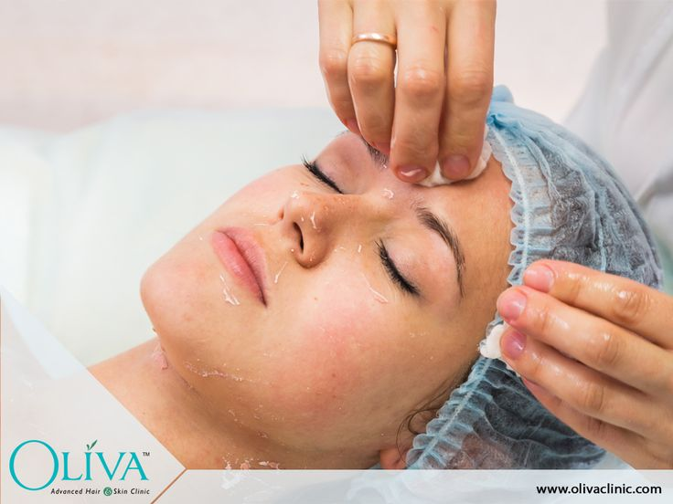 Best Acne treatment by expert cosmetic dermatologist in Bangalore is best to treat acne of all grades and all stages of pimples