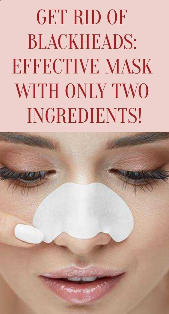 Get Rid of Blackheads: Effective Mask With Only Two Ingredients! –