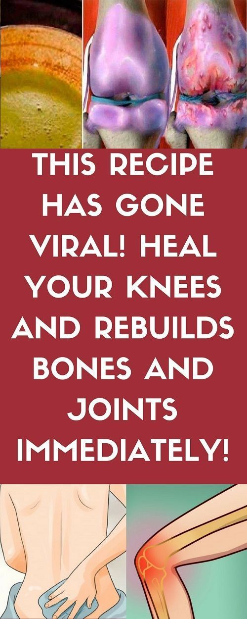 THIS RECIPE HAS MADE ALL DOCTORS CRAZY! IT HEALS YOUR KNEES AND RECONSTRUCTS BONES AND JOINTS IMMEDIATELY! joint pain relief supplements