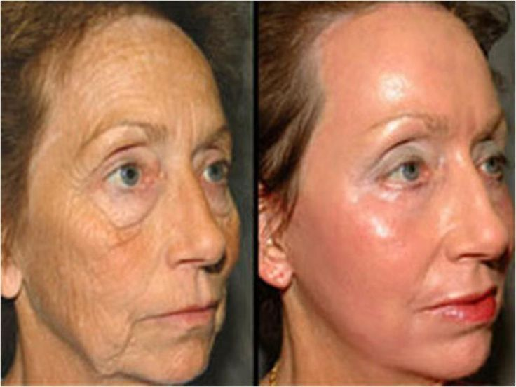 Before and After pictures using serum and moisturizer by luminesce http://www.diamondlife76.jeunesseglobal.com
