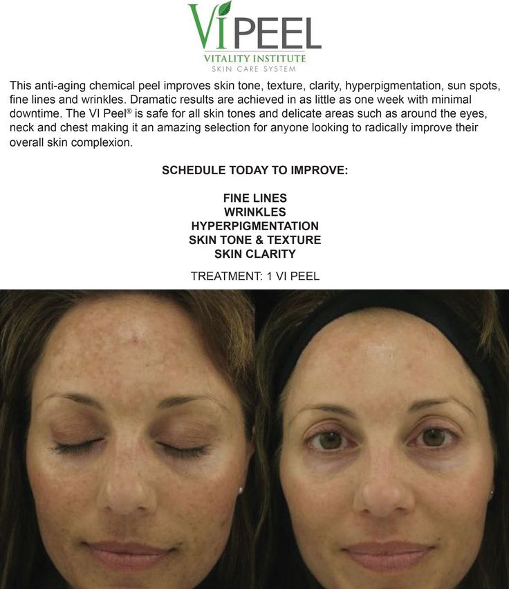 Vi Peel is a fairly more aggressive chemical peel utilizing phenol, TCA, retinoic acid, vitamin c and salicylic acid to improve texture, tone, soften fine lines, clear acne and acne scarring. These pharmaceutical-grade chemical peels target fine lines, wr
