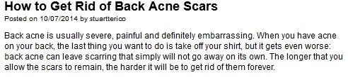 http://www.myfitnesspal.com/blog/stuartterico/view/how-to-get-rid-of-back-acne-scars-700952  #HowtoGetRidofBackAcneScars
