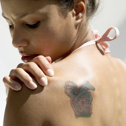 Quicker Tattoo Removal Technology Comes to Phoenix  #TattooRemoval #Tattoo #Phoenix  www.AZFoothills.com