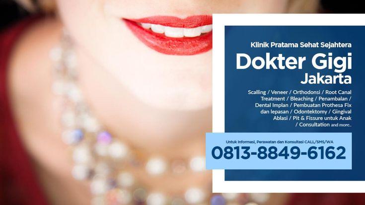 WA 0813-8849-6162 - Dokter Gigi Terdekat Jakarta Selatan