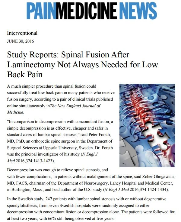 """Study Reports: Spinal Fusion After Laminectomy Not Always Needed for Low Back Pain A much simpler procedure than spinal fusion could successfully treat low back pain in many patients who receive fusion surgery, according to a pair of clinical trials published online simultaneously inThe New England Journal of Medicine. """"In comparison to decompression with concomitant fusion, a simple decompression is as effective, cheaper and safer in standard cases of lumbar spinal stenosis,"""" said Peter…"""
