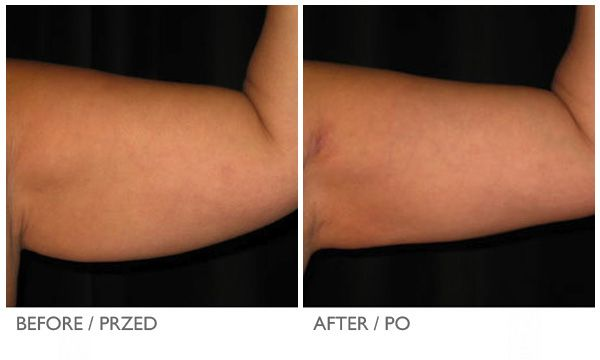 Cool Lipo Before and After Photos: Arms