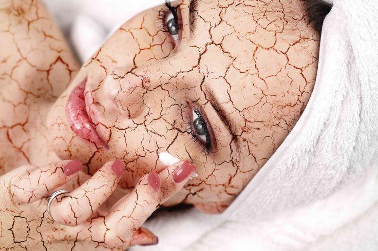 """Il Botox intradermico è una rivoluzionaria applicazione della tossina botulinica per il trattamento delle pelli sebacee e per il miglioramento della texture cutanea. In un solo trattamento è possibile eliminare l'aspetto """"lucido"""" della cute, donare un aspetto più luminoso e fresco."""