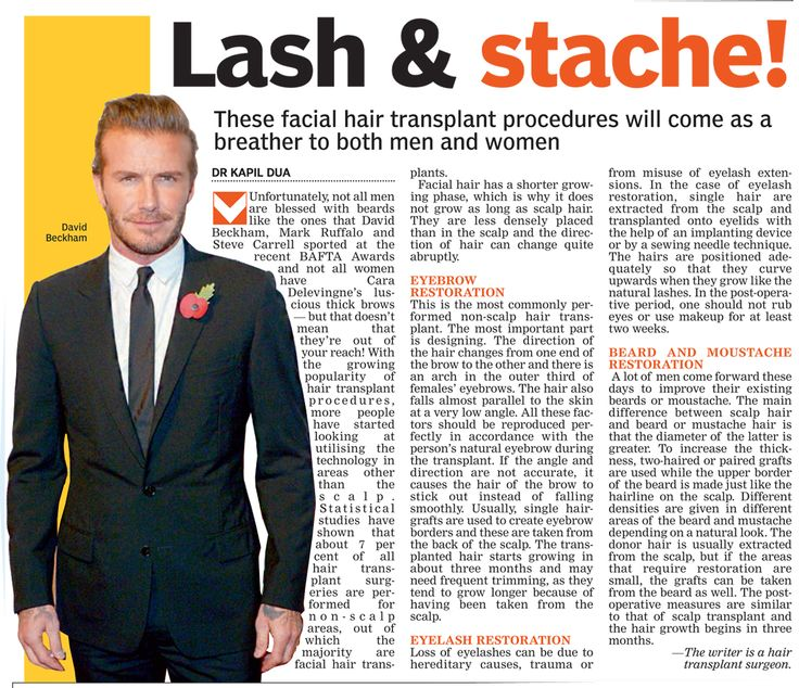 Facial Hair Transplant procedure will come as a breather...  #hairtransplant #hairtransplantation #Hairtransplant #hairtransplantsurgrey #hairlosshelp