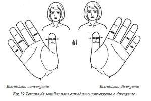 su-jok-36-terapia-de-semillas-estrabismo-convergente-y-divergente