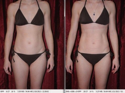 Review (with before and after pictures) of i-Lipo Laser Liposuction Treatment – …