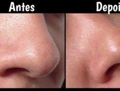 Aprenda como remover pontos negros no nariz com um simples tratamento caseiro - iDicas
