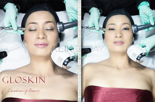 Dapetin paket face treatment di GLOSKIN , Ada bnyak paket perawatan yg bisa kamu pilih disini