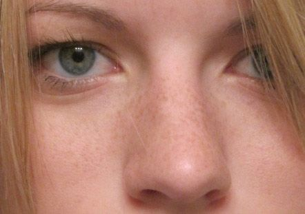 Freckles can destroy the beauty of a face, and you can normally get rid of them, but harder to get rid of nose freckles, use the Freckle Removal Cream,,
