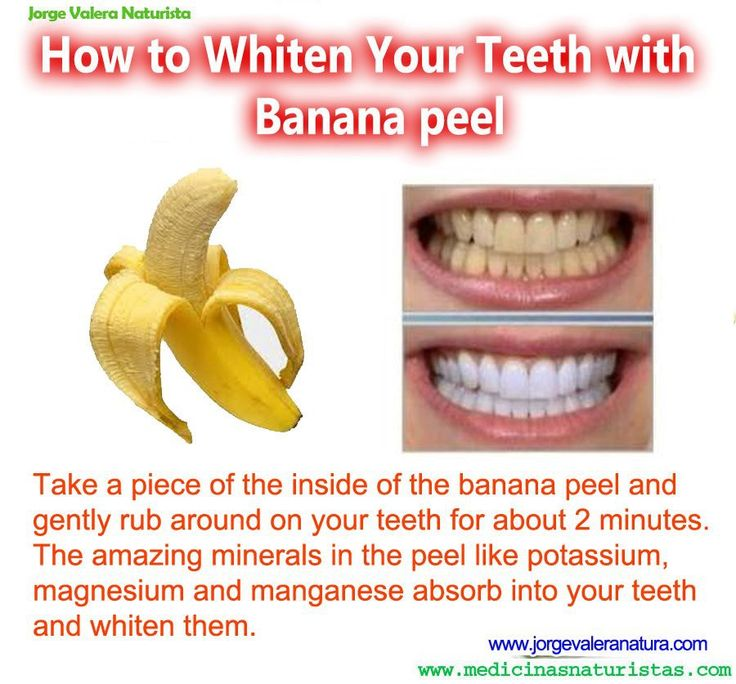 Whiten your teeth with banana peel