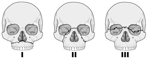 Facial fractures - Le Fort classification (AP) (University of Washington Department of Radiology)
