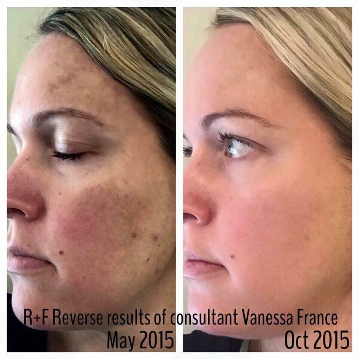 Rodan + Fields Reverse Regimen is for the appearance of brown spots, dullness and discoloration.  60 day money back guarantee.  You have nothing to lose, except spots.