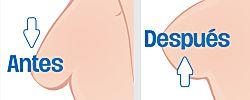 Cómo levantar los senos flácidos y caídos eficazmente
