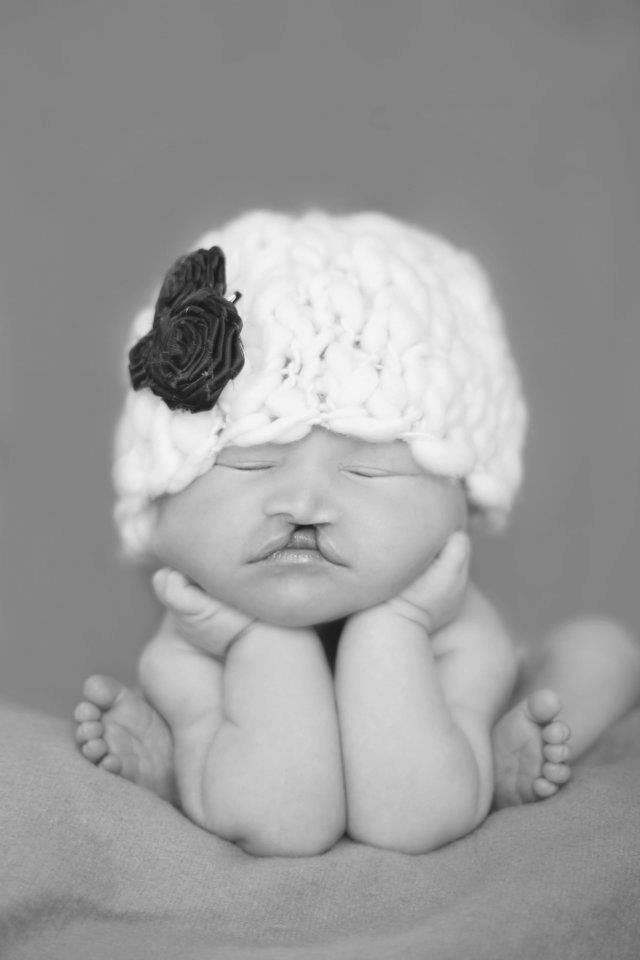 Cleft babies are beautiful too!!  Photo credit goes to Blu Pixel Photography by aida