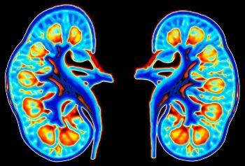 Νεφρός και λαπαροσκοπική επέμβαση - Doctors