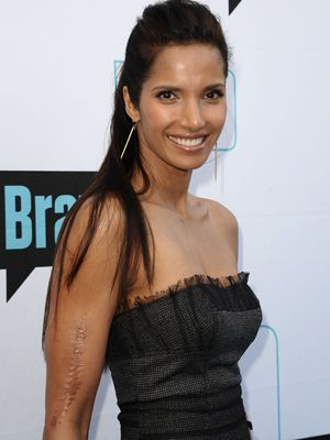 """Padma Lakshmi:   The Top Chef host survived a car crash at age 14—and has an ugly seven inch scar on her right arm to prove it! Even with the defect, Lakshmi went on to be a successful model and then a TV star and she has told an interviewer about the scar, """"I love it because it makes me a person who has an interesting past, and it reminds me that I can survive any pain."""""""