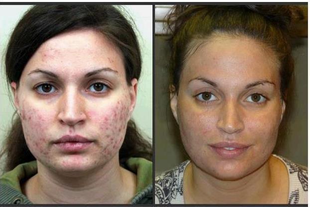 NeriumAD - Real Results!!  www.kensler.nerium.com