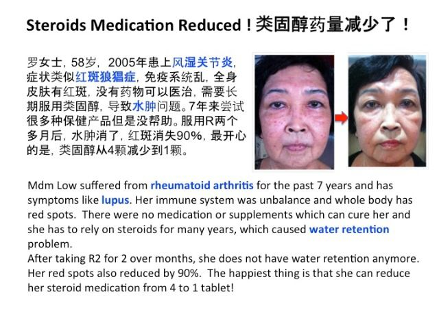 Arthritis  water retention condition improved after taking ageLOC R2. She can take less steroid medication now!