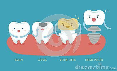 Diente sano del diente, cariados, de oro e imp de la corona
