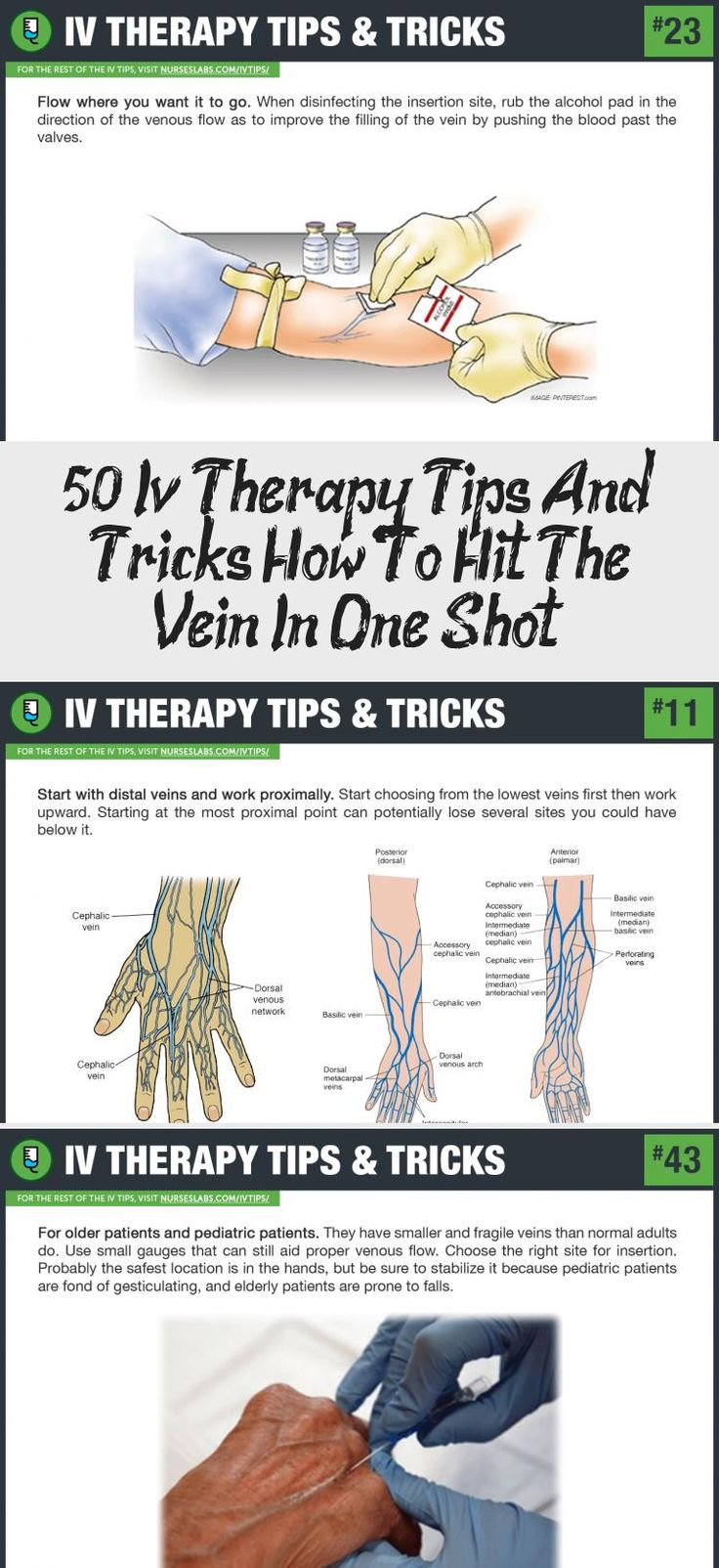 50+ Iv Therapy Tips And Tricks How To Hit The Vein In One