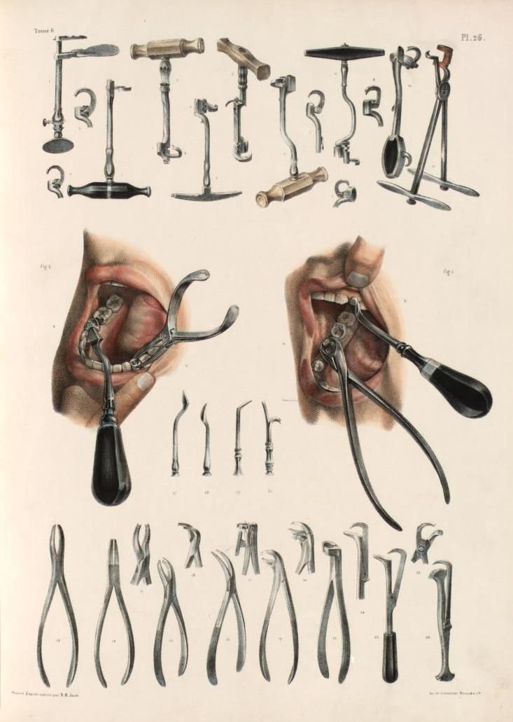 Biomedical Ephemera, or: A Frog for Your Boils — Tooth Extraction and Extraction Tools I don't...