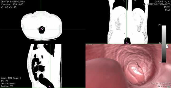 Navegacion virtual Colo TC  (endoscopia virtual )