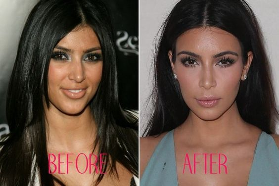 This before and after picture shows in disputable proof that Kim Kardashian got a nose job. The lighting in the after picture really shows the subtle lines and contours of the shape of her nose.Read more at https://plentat.com/facts-kim-kardashian-plastic-surgery/  #kimkardashianplasticsurgery #kimkardashian #kimkardashianbuttimplant #plasticsurgery